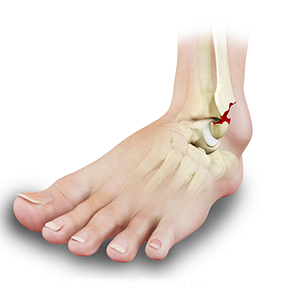 Stress Fractures of Foot and Ankle